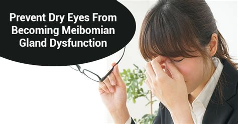 How To Prevent Dry Eyes From Becoming meibomian gland