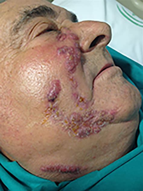 Uncommon cervicofacial lesions | The BMJ